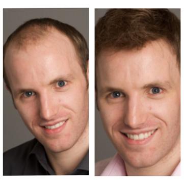 pelucas Danien antes y después