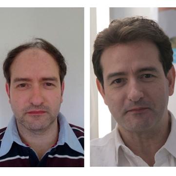 Pelucas para hombre antes y después