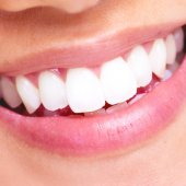 lucir bonita sonrisa