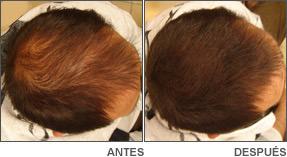 Tratamiento alopecia Danien 4