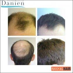 solución alopecia en coronillas