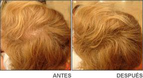 Tratamiento alopecia Danien 1