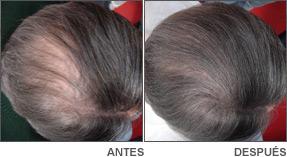 Tratamiento alopecia Danien 2