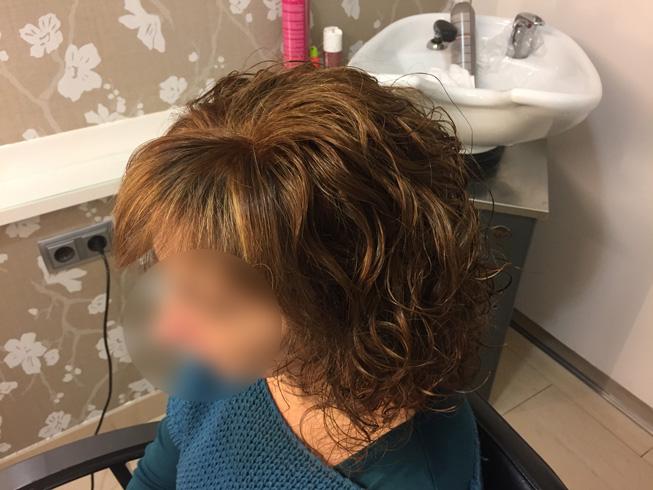 alopecia cicatrizal en mujer