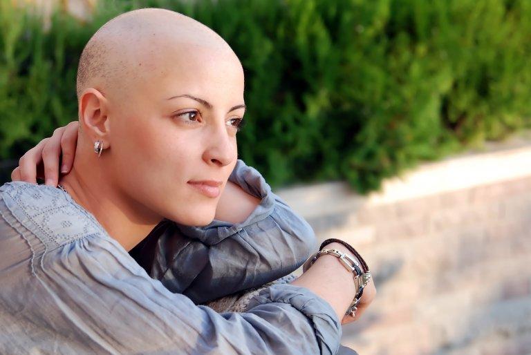 alopecia en mujer