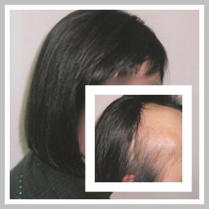 alopecias cicatrizales