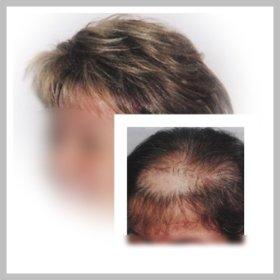 Alopecia androgenética en mujer