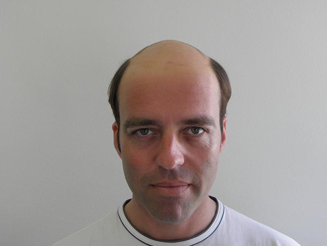 Tratamiento alopecia androgenética